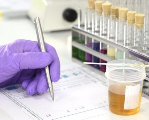 Lab Testing Urine Test Cup